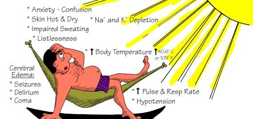 Heat Stroke First Aid