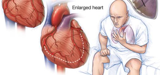 First aid for heart failure