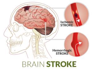 stroke-first-aid