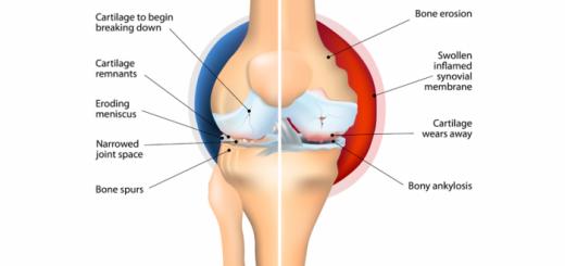 osteoarthritis-vs-rheumatoid-arthritis