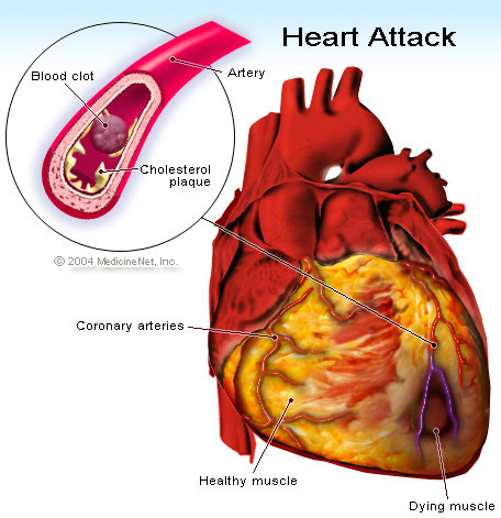 What is the difference between a heart attack and heart failure