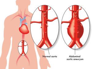 Abdominal Aortic Aneurysm First Aid