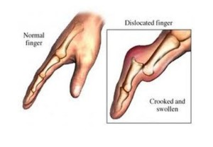 Dislocation signs
