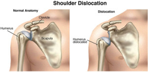 First aid for dislocation