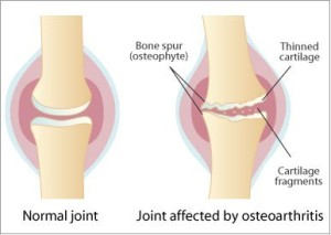 First aid for osteoarthritis