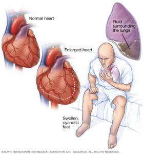 First aid for heart failure
