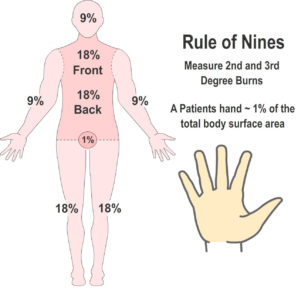 The Rule of Nines for Burns and Scalds
