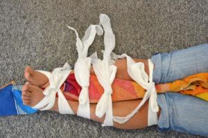 Fracture Splinting