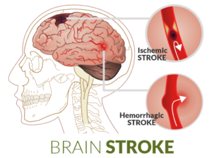 What Is A Stroke And Who Is At Risk First Aid For Free