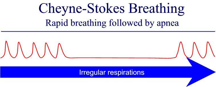 cheyne-stokes-respiration