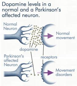 dopamine-parkinsons-disease