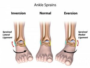 What Is The Difference Between A Sprain And Strain