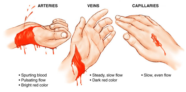 What are the different types of bleeding in first aid