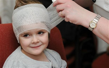 Head injuries children – First Aid for Free