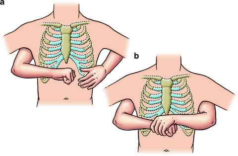 a fist is placed above the navel (belly button) but below the rib cage